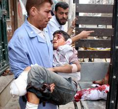 A young boy wounded by Syrian government shelling