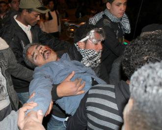 A protester is wounded during protests outside the Interior Ministry following the Port Said massacre (Bora S. Kamel)