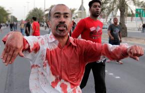 A protester covered in blood from carrying a fellow marcher who was injured in Bahrain