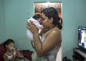 A mother holds her infant born with microcephaly