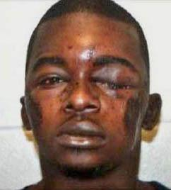Joshua Robinson after being brutally beaten by police