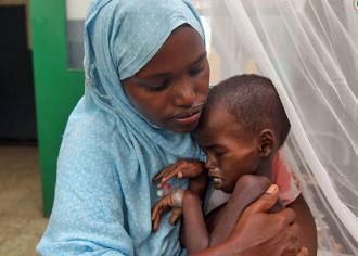 A malnourished child in a hospital in Mogadishu, Somalia (AMISOM)