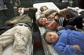 A man and three children wounded by Israeli air strikes in Gaza