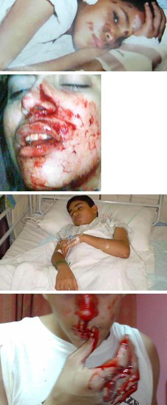 Child victims of the barbaric crackdown in Bahrain