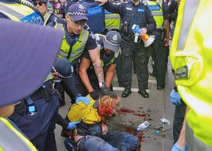 Police brutalize an anti-fascist activist in Melbourne, Australia (Liz Walsh)