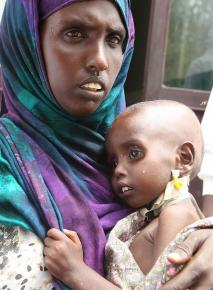 Somali woman holds her child while waiting for food aid in a refugee camp
