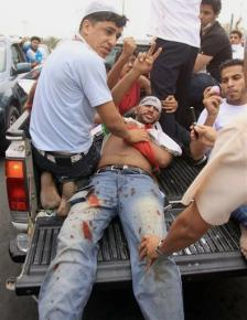A protester wounded during a Bahraini military assault against protesters in February 2011