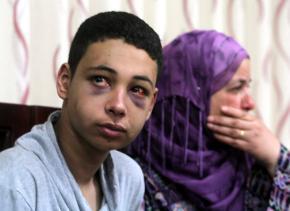 Tarek Abu Khdeir after his beating by Israeli police