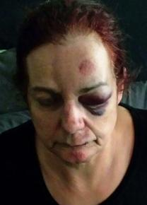 Cindy Klumb after she was injured in a hit and run