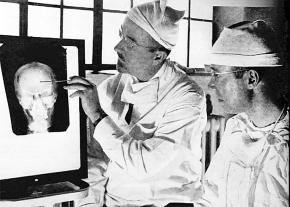 Doctors examine an x-ray of the brain